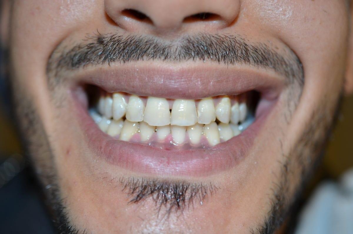 tannlege-polen-etter-tannbleking-by Beyond-Polus laser Lamp